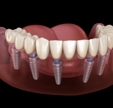 Treatment - All-on-Four/All-on-Six Same Day Teeth