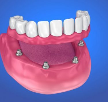 Treatment - Implant-Retained Dentures