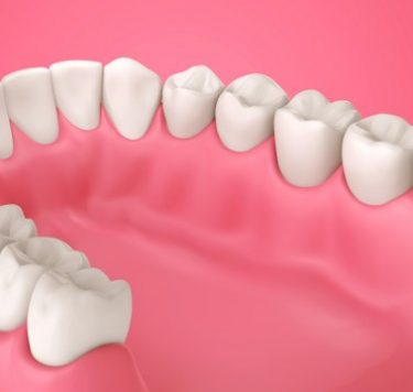 Treatment - Periodontics — The Health of Your Gums