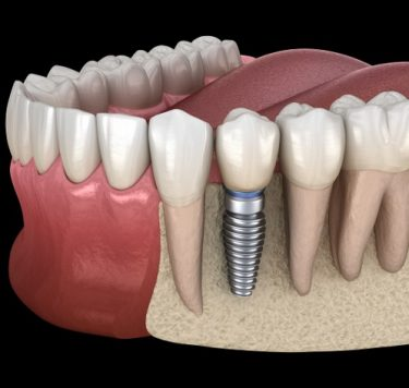 Treatment - Single Tooth Dental Implants